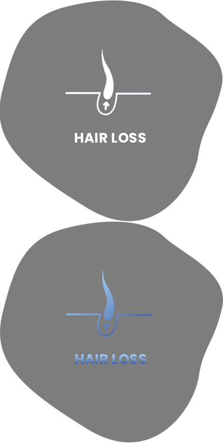 hair loss robotic hair restoration long island