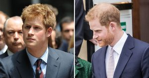 Prince Harry's Hair