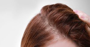 Trans Women and Hair Loss