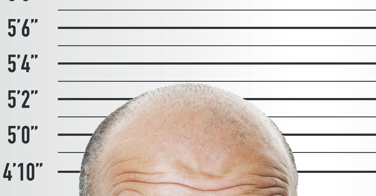 Short Men & Hair Loss
