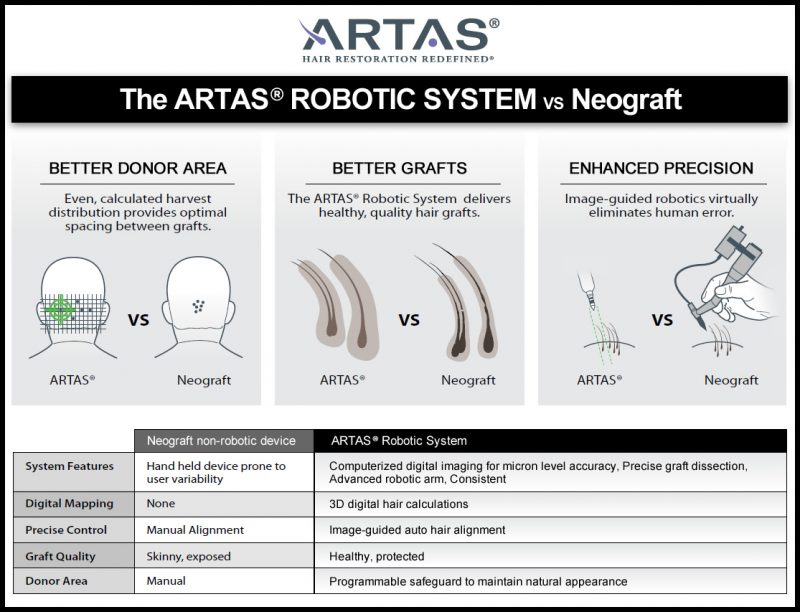 ARTAS vs. Neograft Hair Transplants Comparison