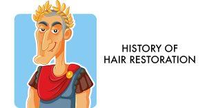 History of Hair Restoration