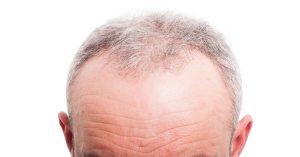 Hair Line of RHRLI Patient