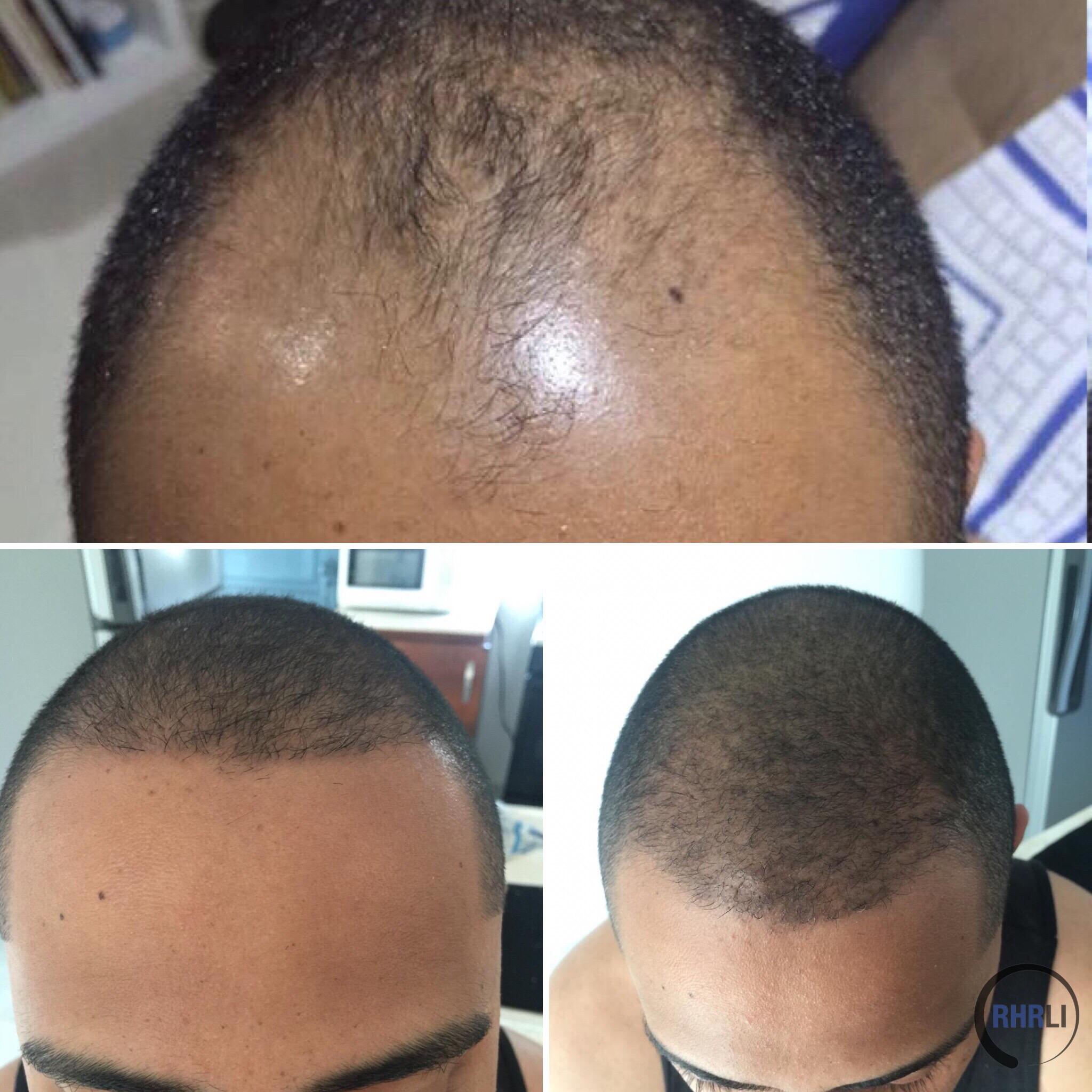 ARTAS FUE Hair Transplant Results