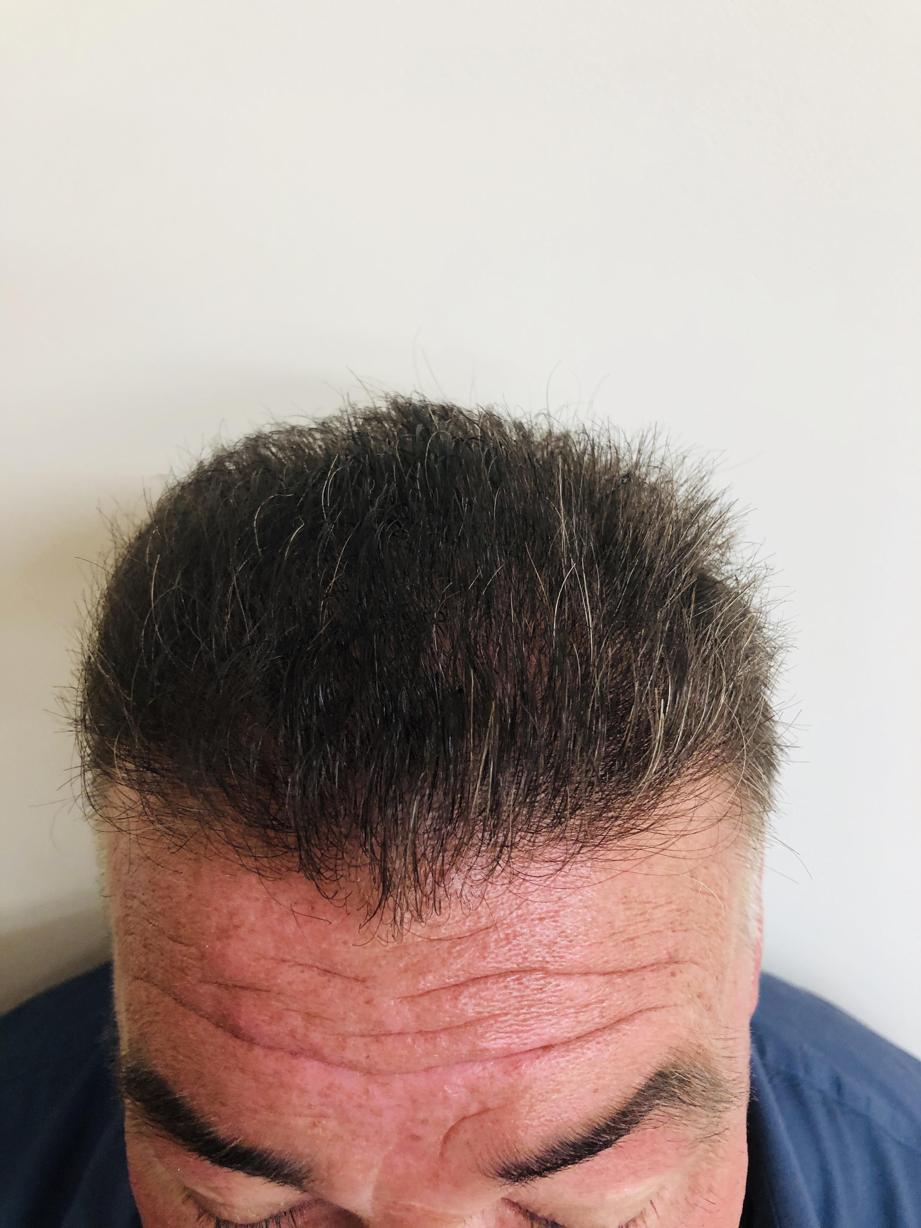 After hair transplant from RHRLI b1