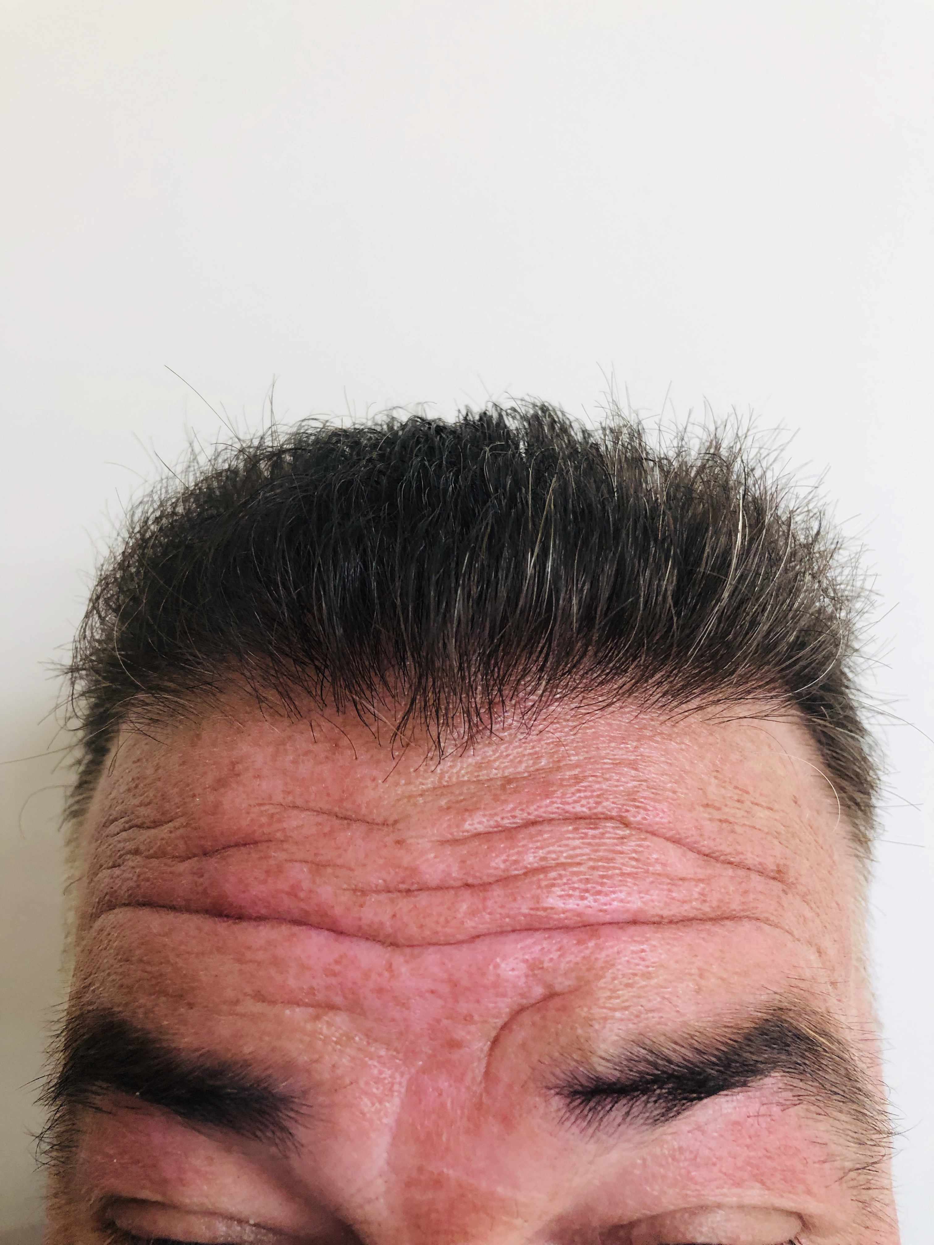 After hair transplant from RHRLI b2