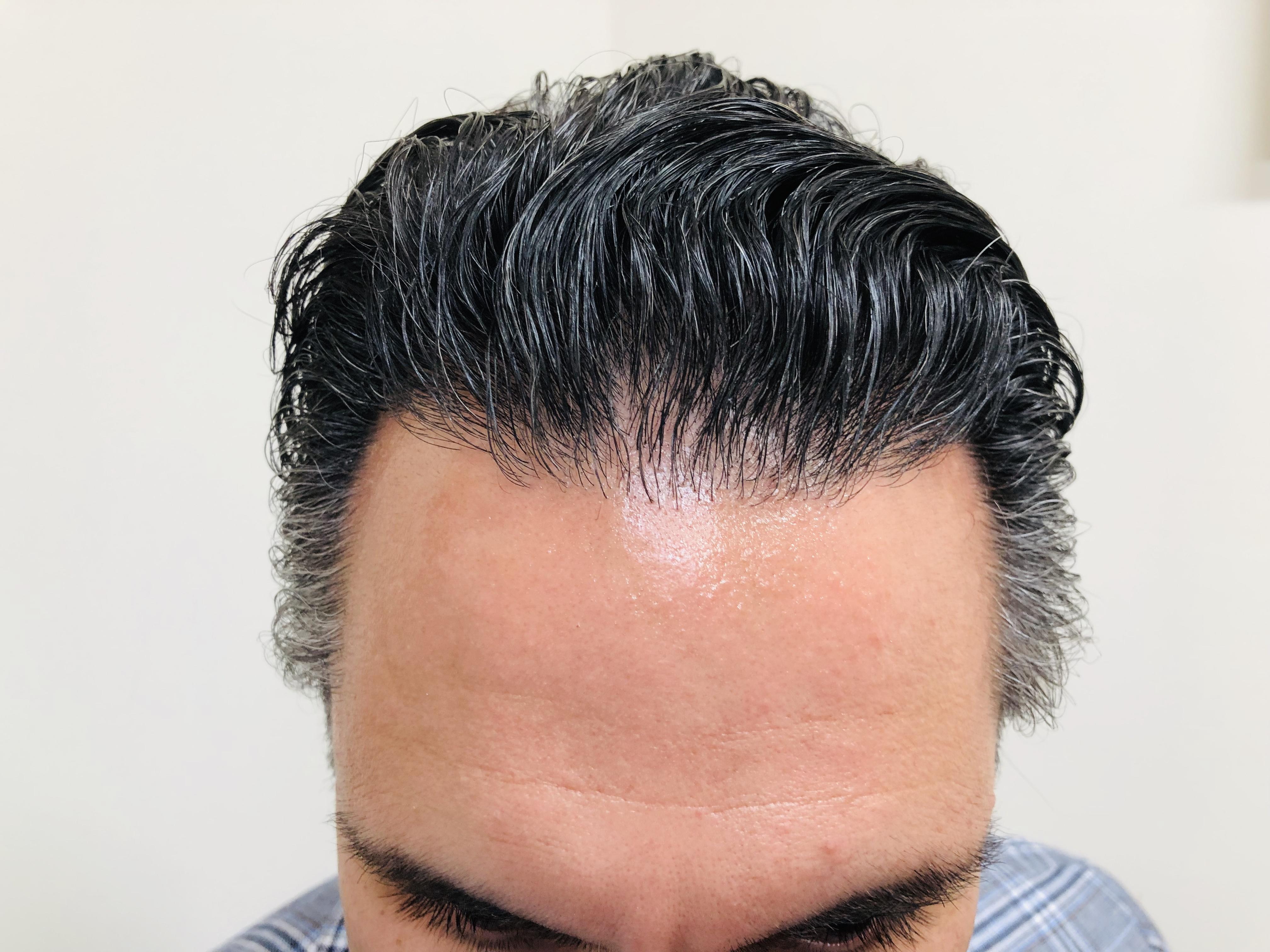 After Hair transplant at RHRLI