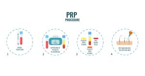 platelet rich plasma therapy infographic