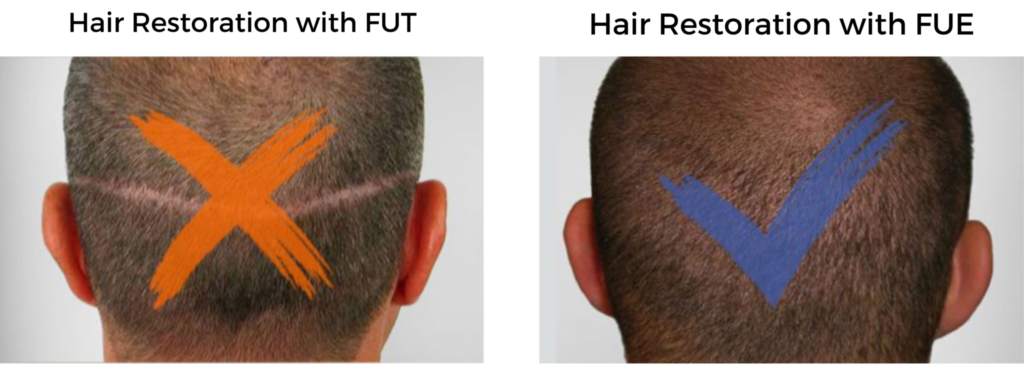 FUT vs. FUE Hair Restoration Comparison
