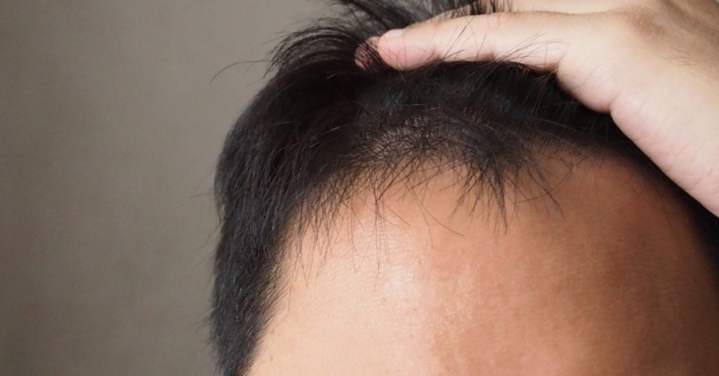Asian hairline