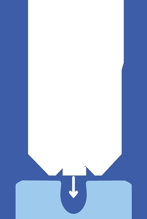 Hair follicle image