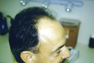 Michael before hair restoration 2