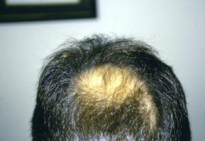 Michael before hair restoration 1