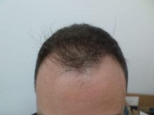 Michael Jr. Before Hair Transplant