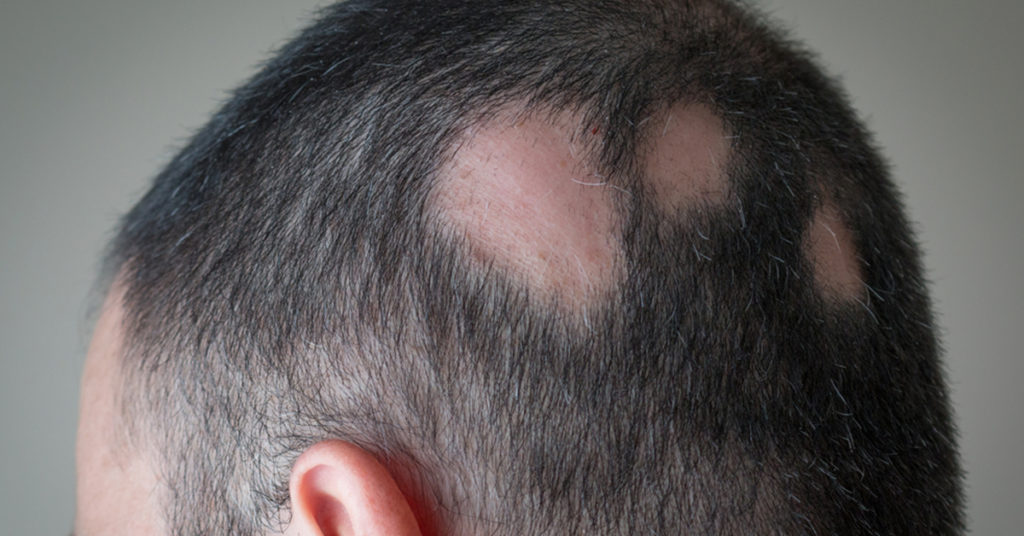 Autoimmune disease caused hair loss