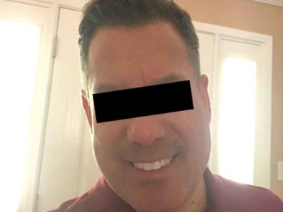 N.H. After Hair Restoration
