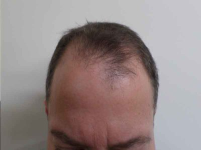 N.H. Before Hair Restoration