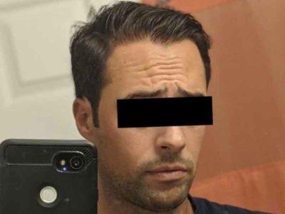 N.T. After Hair Restoration