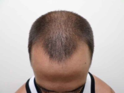 N.T. Before Hair Restoration
