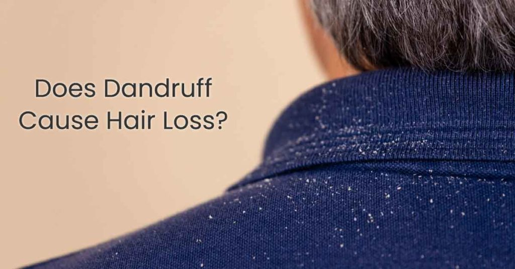 does dandruff cause hair loss?