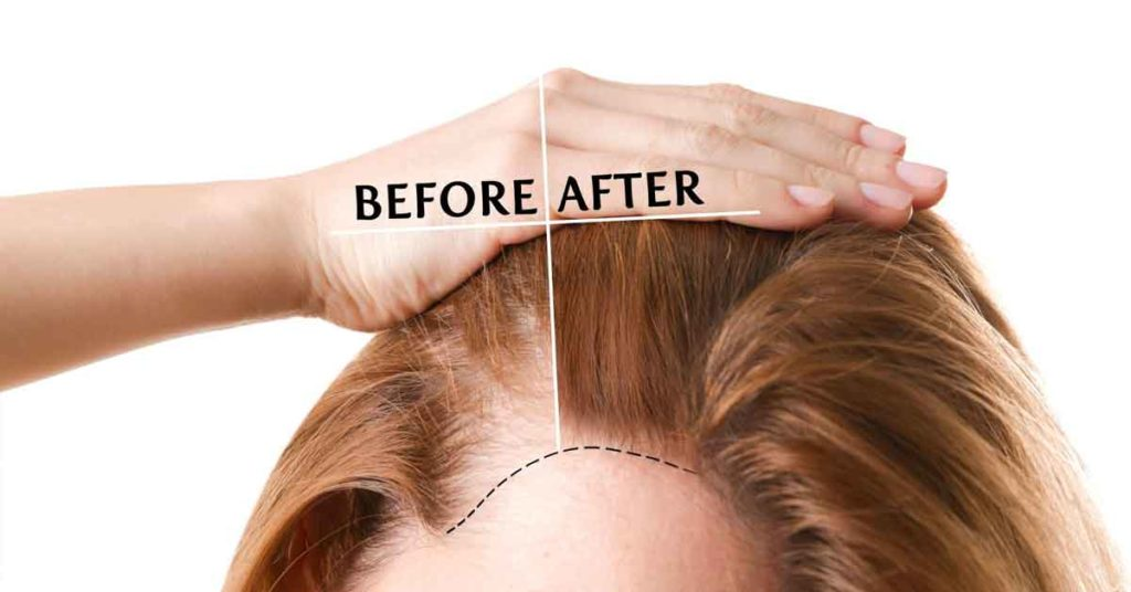 before and after hairline lowering