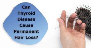 can thyroid disease cause permanent hair loss?