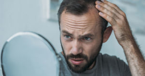 man worried about seasonal hair loss