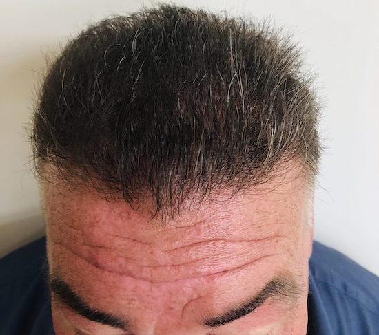After hair transplant from RHRLI
