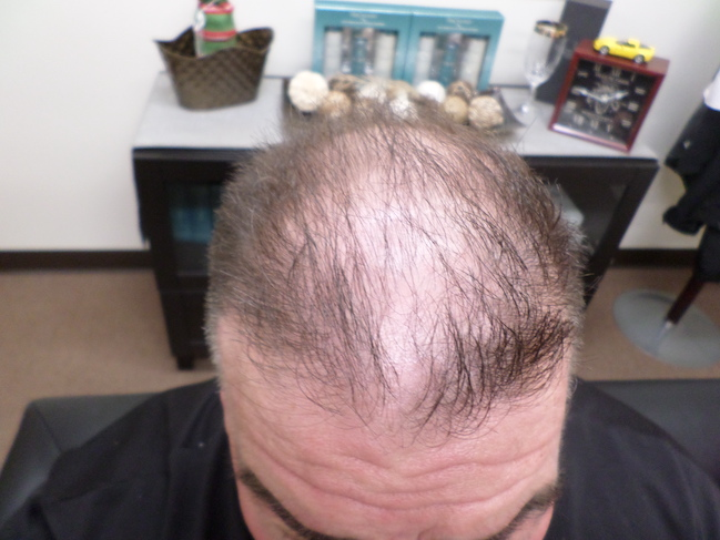 Before hair transplant from RHRLI