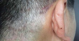man with tinea capitis
