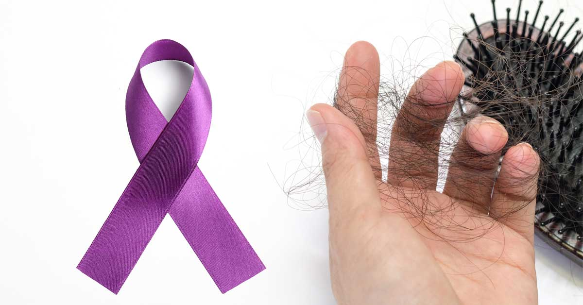 lupus and hair loss