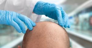 doctor diagnosing hair loss