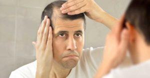 man looking at hair loss in mirror